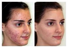 Effective derma roller treatment & negative effects at arora skin clinic in surat gujarat poor skin