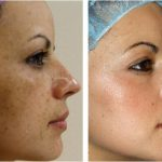 Effectiveness of glycolic acidity peels in treating melasma