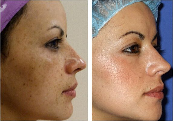 Effectiveness of glycolic acidity peels in treating melasma polarized filters with