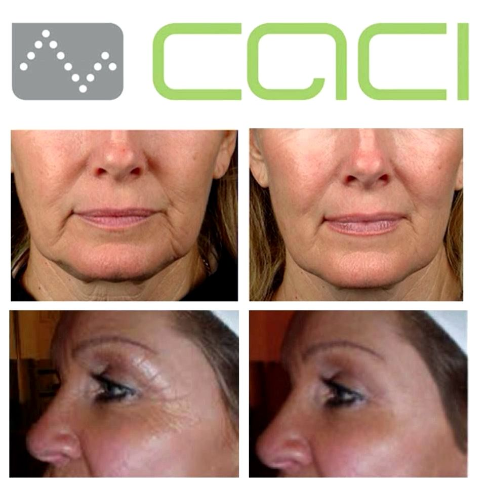 Facial microdermabrasion and caci nonsurgical facelift last couple of days
