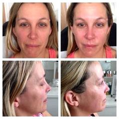 Facial microdermabrasion and caci nonsurgical facelift running about, getting stressed