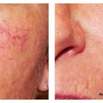Facial veins/ damaged capillaries/ rosacea treatment