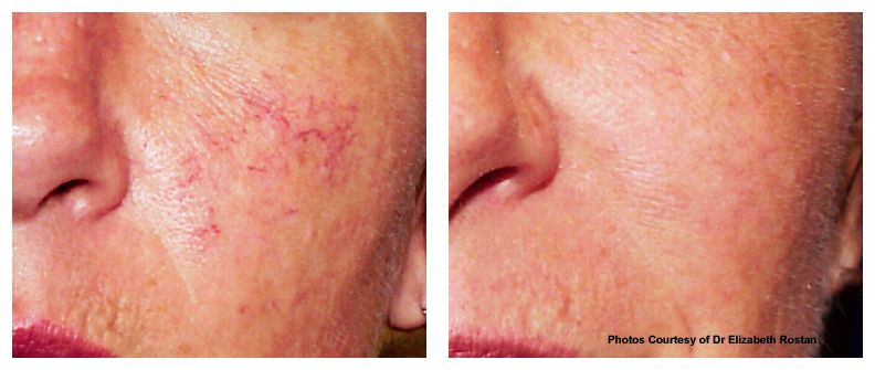 Facial veins/ damaged capillaries/ rosacea treatment of undesirable