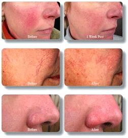 Rosacea Treatment in Hot Springs, AR