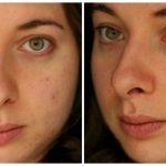 Facials & skins – tca glycolic peels