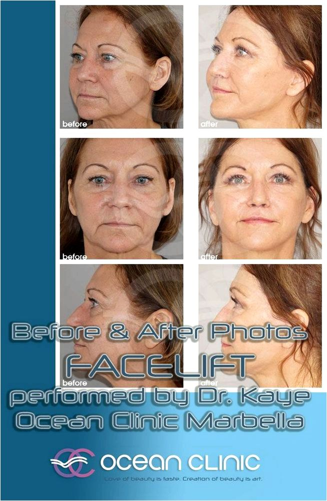 Fullface enhancement Read much