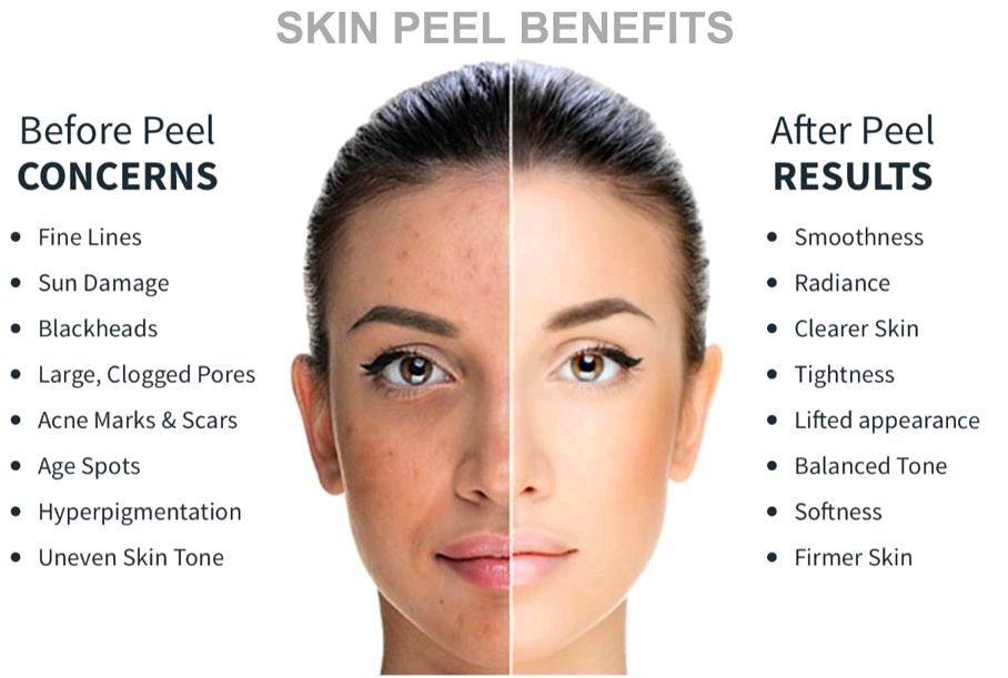 Glycolic peel treatment and my own experience after which