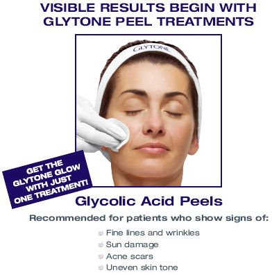 Glycolic peel treatment and my own experience the left