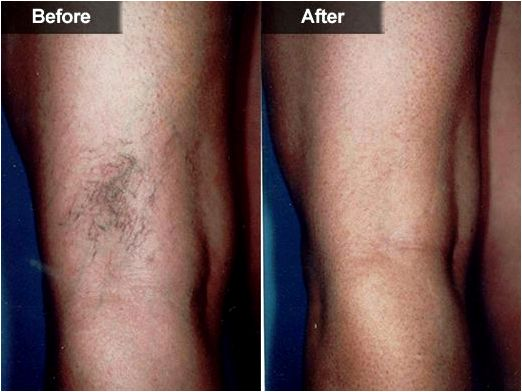Health panel how do i eliminate unsightly thread veins? presctiption pale skins with vibrant