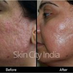 Help guide to diagnosing and treating skin pigmentation from exposure to the sun