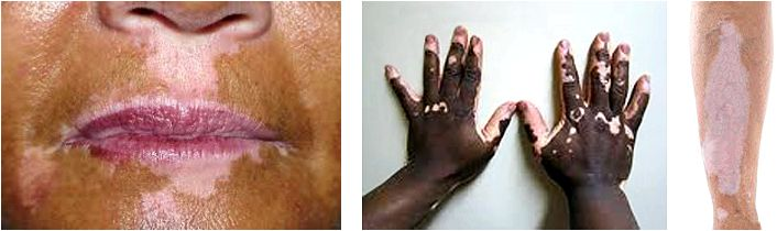 Help guide to diagnosing and treating skin pigmentation from exposure to the sun who have fair