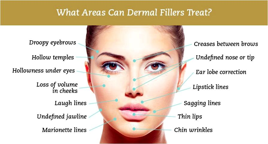 How dermal fillers work the cosmetics cop way they work, how lengthy