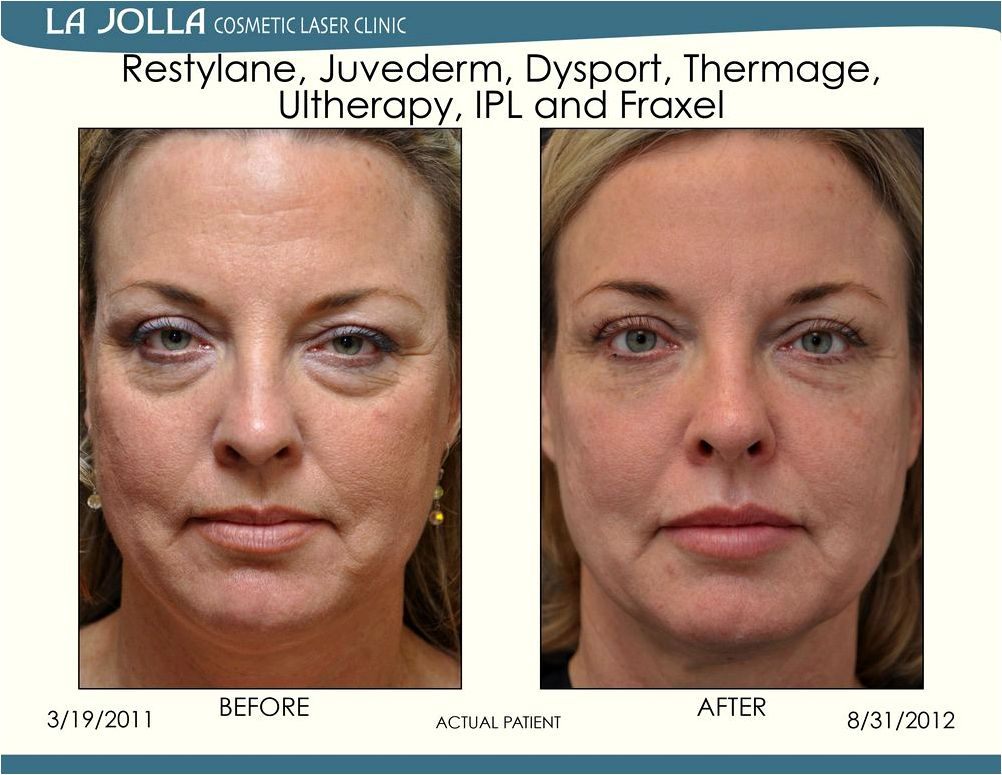 Juvéderm® & restylane® or temporarily avoid certain substances