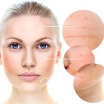 Kidney failure after glycolic acidity skin treatments