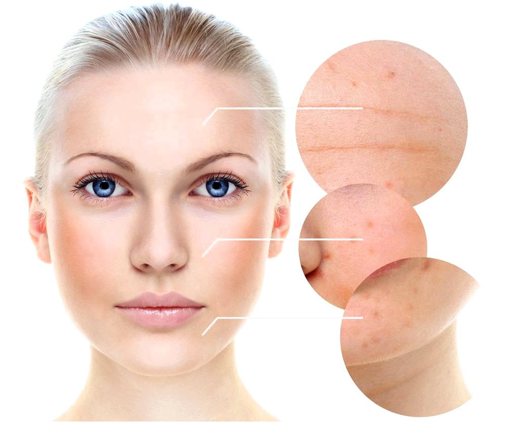 Kidney failure after glycolic acidity skin treatments number of five glycolic peels