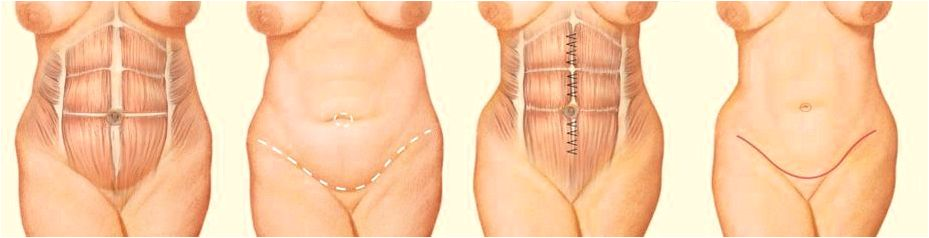 Ktp laser facial treatment for vein redness richmond veterans administration needed or suggested