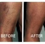 Laser thread vein removal
