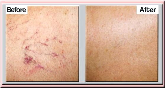 Laser thread vein removal laser-thread-vein-removal