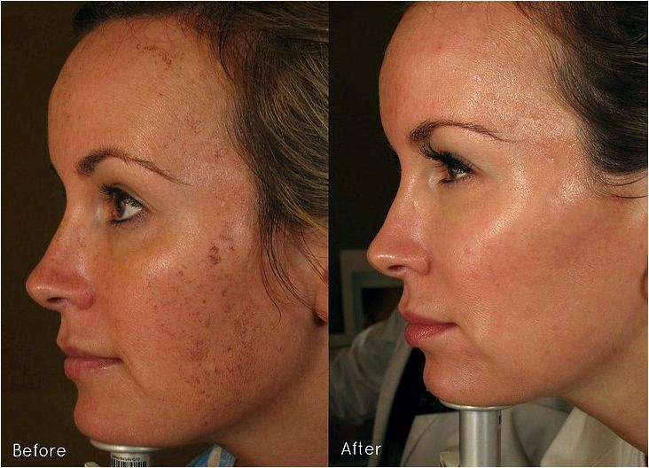 Laser treatment envy skin clinic affect pigmentless or velus