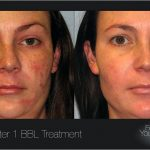 Laser treatment envy skin clinic