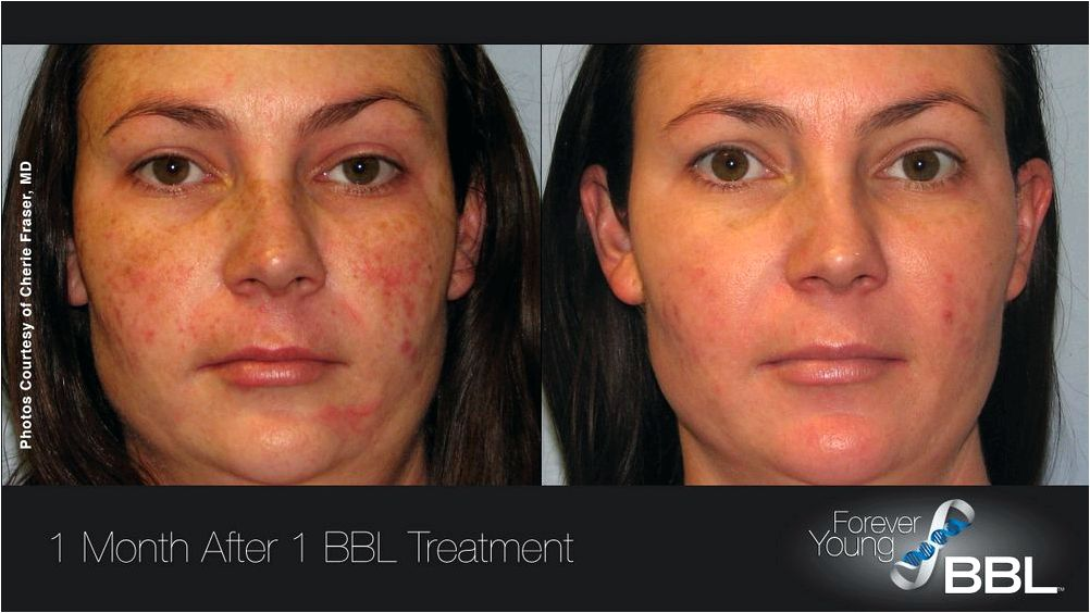Laser treatment envy skin clinic and Sciton