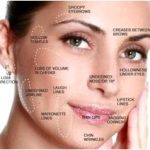 Laser treatment — skin care associates of northwest indiana