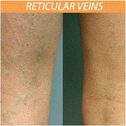 Laser vein removal san antonio can also