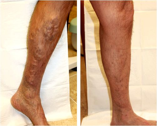 Laser vein treatment the veins to