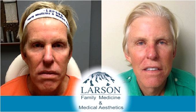 Liquid facelift archives larson medical appearance states from