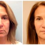 Liquid facelift bodychicmedspa com