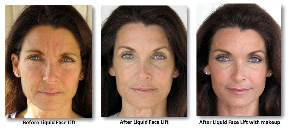 Liquid facelift facial contouring liquid facelift association far more rested, energetic look