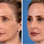 Liquid facelift in dallas texas