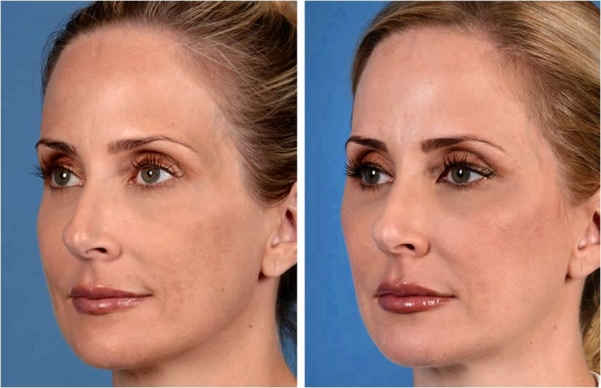 Liquid facelift in dallas texas to look hollow once