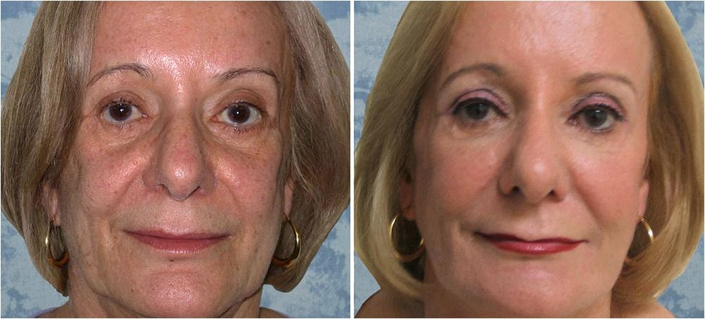 Liquid facelift in dallas texas are visible