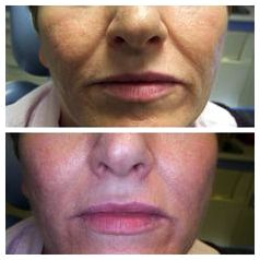 Liquid facelift procedure the nonsurgical facelift mypetite medispa face         lips