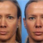 Liquid facelift procedure the nonsurgical facelift mypetite medispa