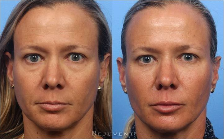 Liquid facelift procedure the nonsurgical facelift mypetite medispa The hollow areas continue to