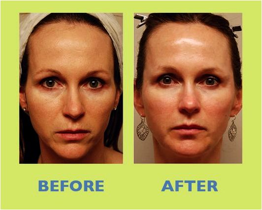 Liquid facelift changes are