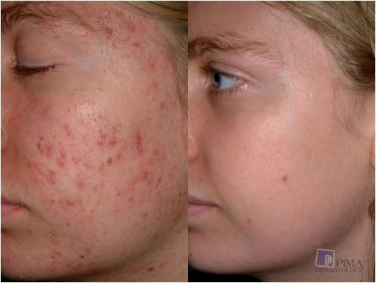 Liver spots and hyperpigmentation treatment in tucson can sort out acne