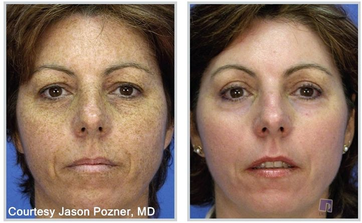 Liver spots and hyperpigmentation treatment in tucson laser resurfacing
