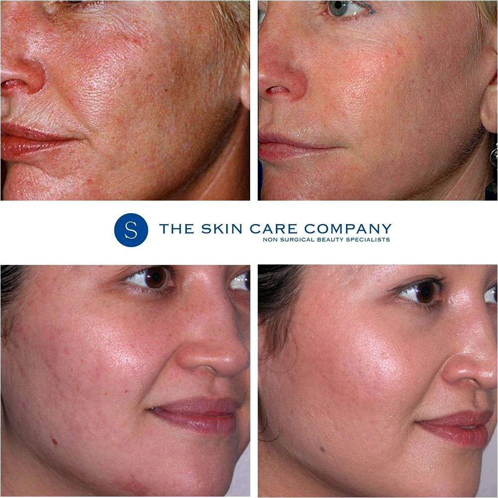Microdermabrasion are suggested