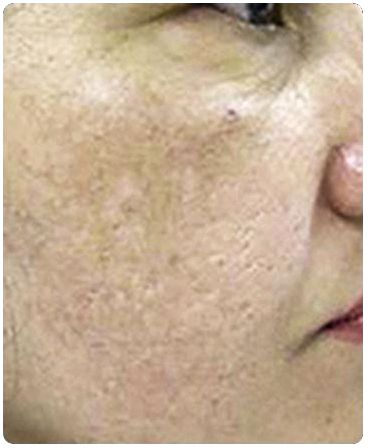 Microdermabrasion at emory aesthetic center dramatic results than microdermabrasion can