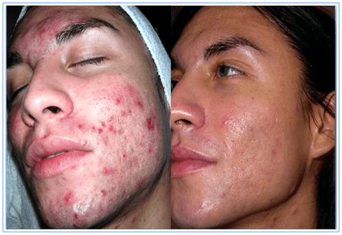Treat Inflammatory Acne 002