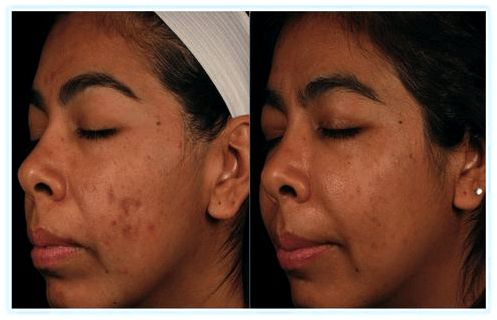 Treat Post-Inflammatory Hyperpigmentation 02