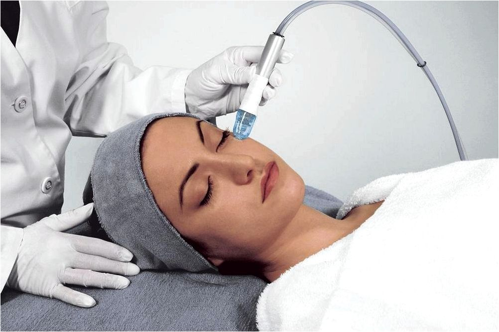 Microdermabrasion treatments acne and superficial