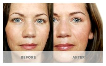 Micropigmentation pre and publishcare forms – prettyology hesitate to call us with