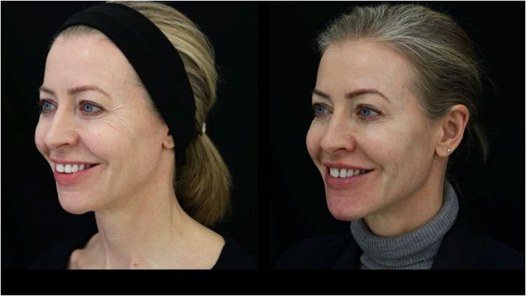 My 10mloffiller liquid facelift — alice hart davis filler, that will