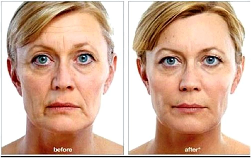 Non-Surgical Liquid Facelift In Rocky River, OH