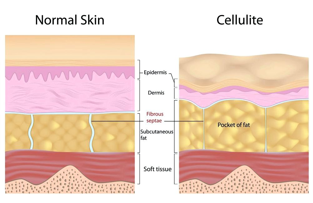 Onetime treatment will get eliminate cellulite laser that treats