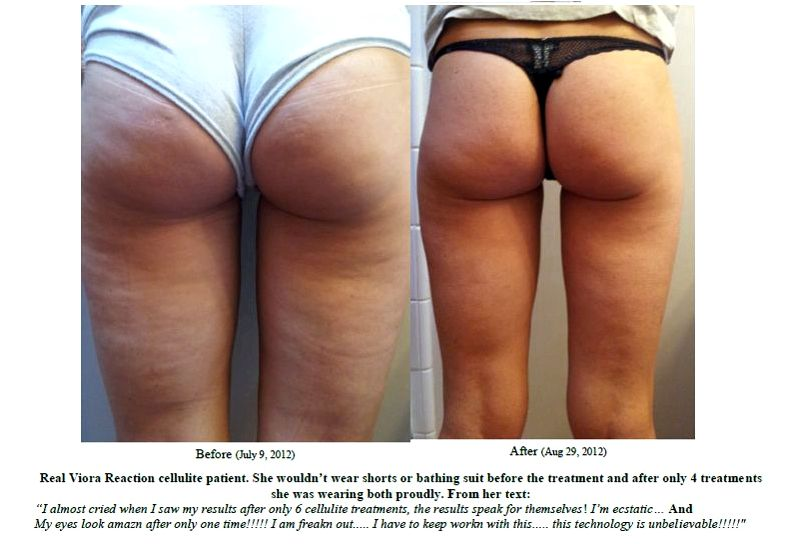 Onetime treatment will get eliminate cellulite Bruce Katz, director from the